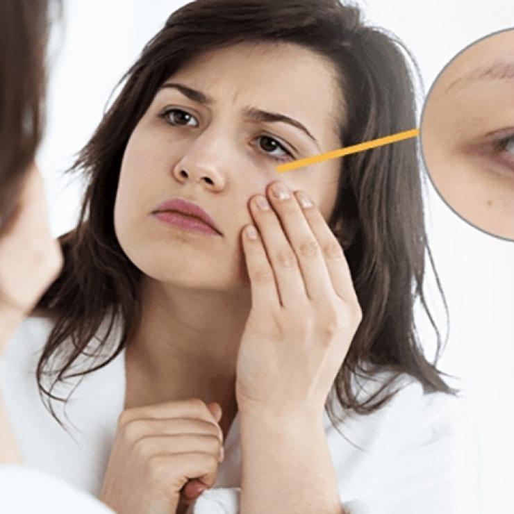 Các hoạt chất làm giảm thâm, bọng mắt